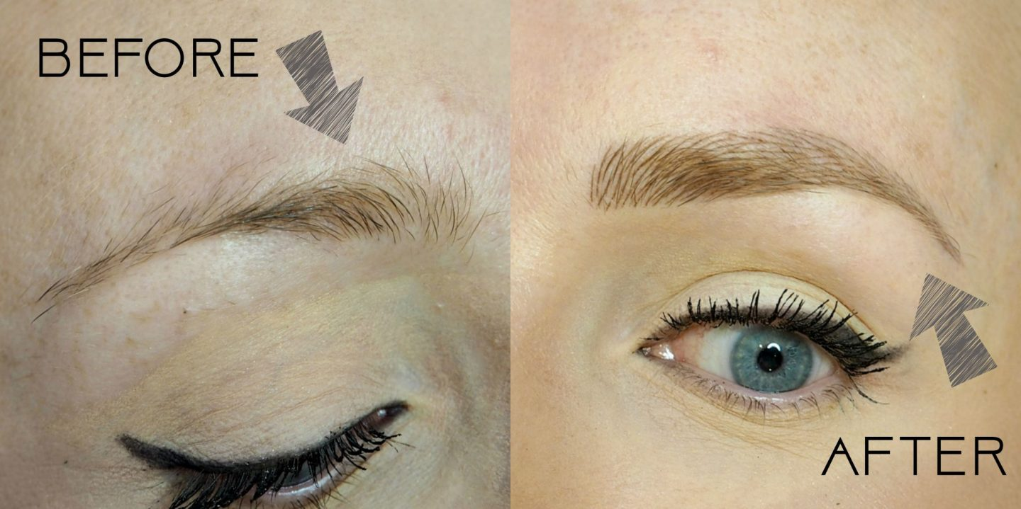 What Is Nano Needle Brows And What Is The Difference Between Nano Needle And Microblading?